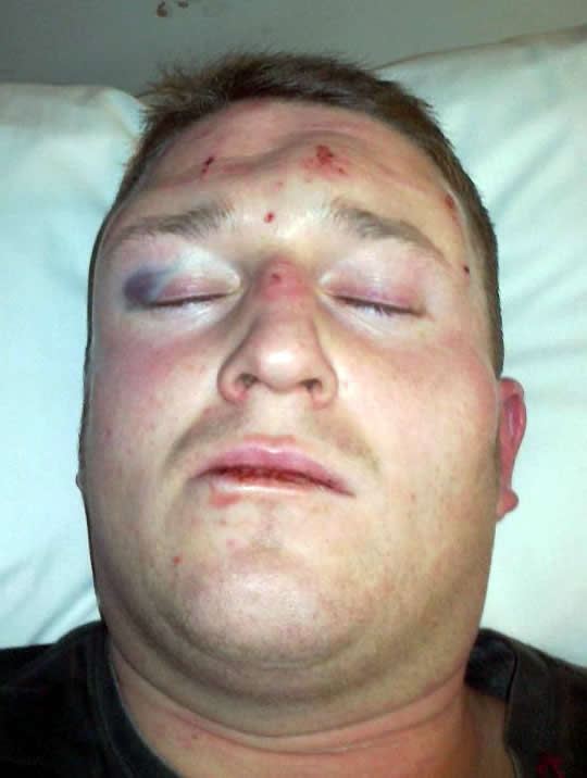 Stephen Lennon Got Knocked the Hell Out!
